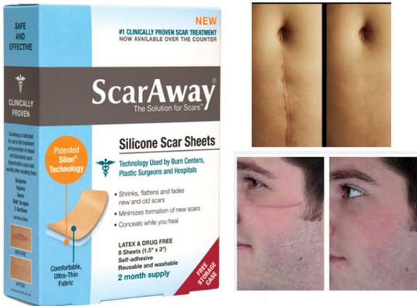 Top 10 Scar Removal Creams |
