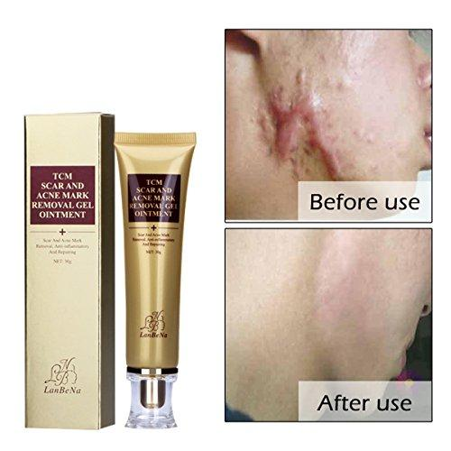 Shoppingexpress Pk Amareu Acne Scar Removal Cream Skin Repair